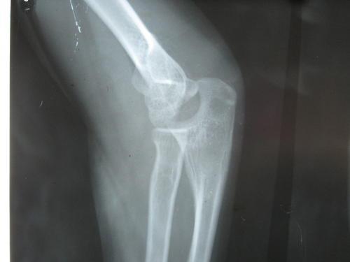 肘部伤筋治疗法