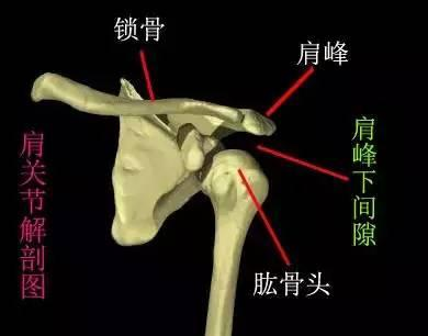 肩周炎治疗法